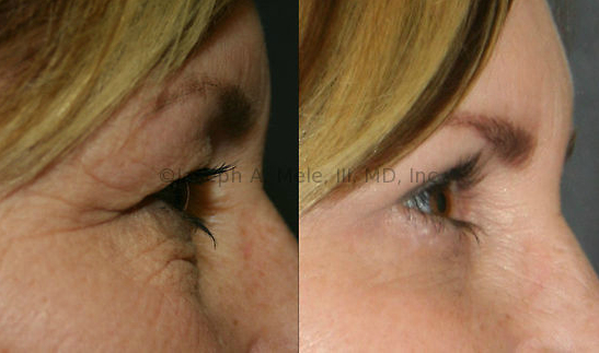 The Eyelid Lift or Blepharoplasty removes the skin that hangs over the eyes and the bags that hang under the eyes.