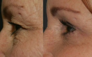 Eyelid lifts remove excess skin and fat from the eyelids, revealing a smoother, rested and more alert appearance.