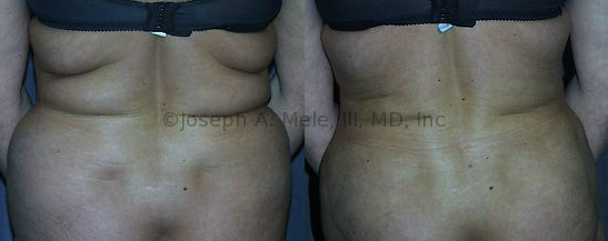 Liposuction removes excess fat from the bra-line, lower back and upper buttocks, and another Muffin Top is reduced.