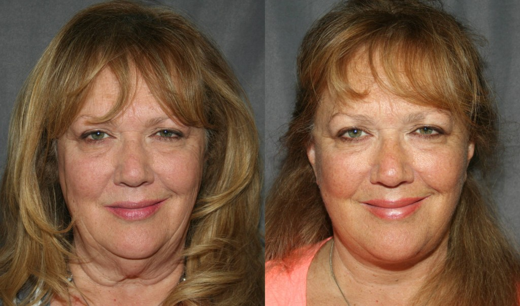 Are Selfies and FaceTime driving a surge in Facelifts?