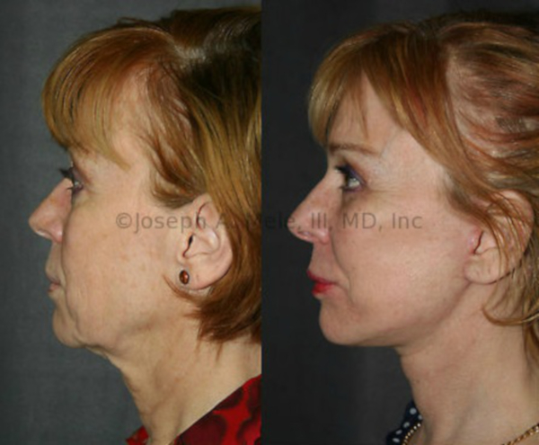 Facelift with Cheek Implants