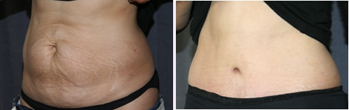 Full Tummy Tuck (Abdominoplasty) of the Abdomen - Before (Left) / After (Right)
