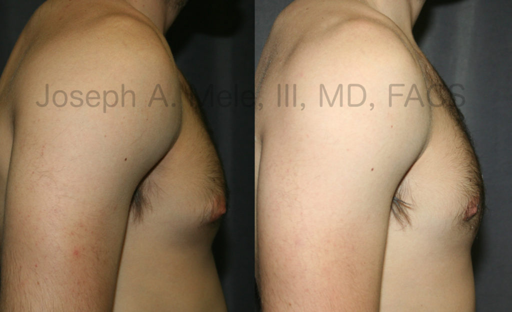 Male Breast Reduction is one of the most requested cosmetic plastic surgery procedures year after year.