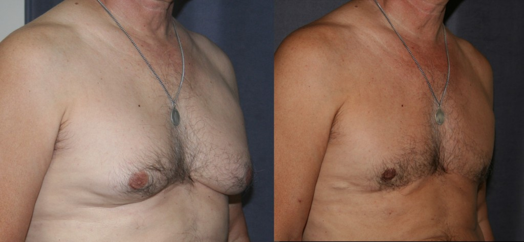 Gynecomastia and Skin Reduction - The before picture shows enlarged breasts with disproportionate fat, excess glandular tissue and skin folding onto itself at the base of the breasts. After, the excess fat, gland and skin have been removed through an incision that runs along the base of the breasts. As his tan shows, after breast reduction, this patient is happier both in and out of clothing.