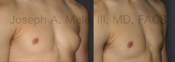 Before and after photos of Gynecomastia Reduction for the asymmetrical male chest.