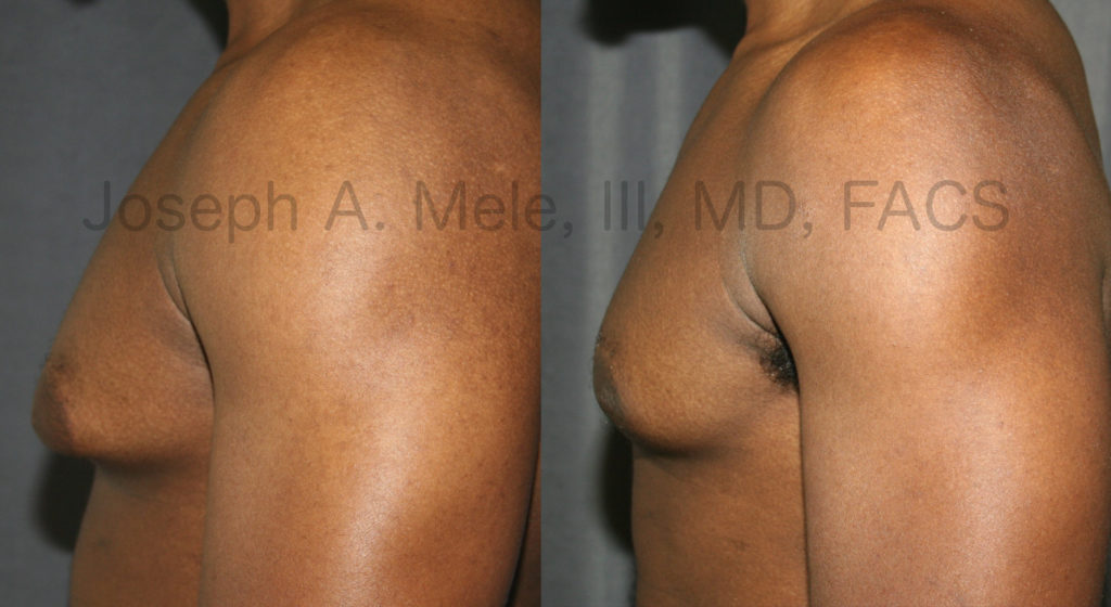 With good skin tone, even large breast reductions can be performed through small, minimally invasive incisions.