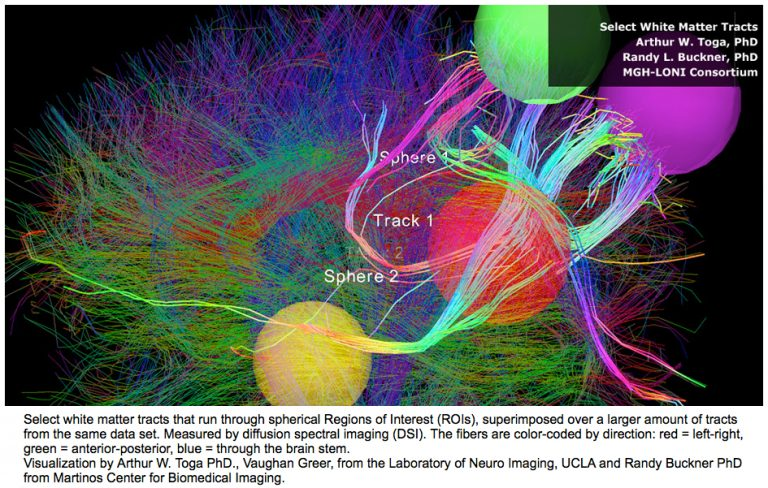 A connectome of the IP addresses of the brain.