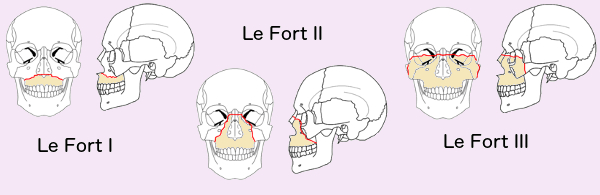 Rene Le Fort documented how the face breaks with severe trauma. In Le Fort I fractures, the upper jaw is separated from the face. With Le Fort II fractures, the nose and upper jaw are separated from the face. A Le Fort III fracture is the separation of all the facial bones from the skull. All Le Fort fractures are worth avoiding, and are less likely, if you wear your seat belt.