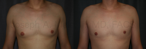 Liposuction is sometimes all that is needed to smooth out stubborn man boobs (moobs). If the fullness is due to fat, and the area under the nipples is soft, liposuction may be the cure.