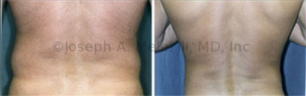 Liposuction of the Back (Love Handles)