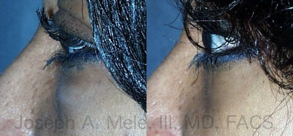 The Transconjunctival Lower Blepharoplasty before and after pictures above show how the lower eyelid is smoothed by removing the excess fat contained in the lower eyelid via an incision inside the eyelid.