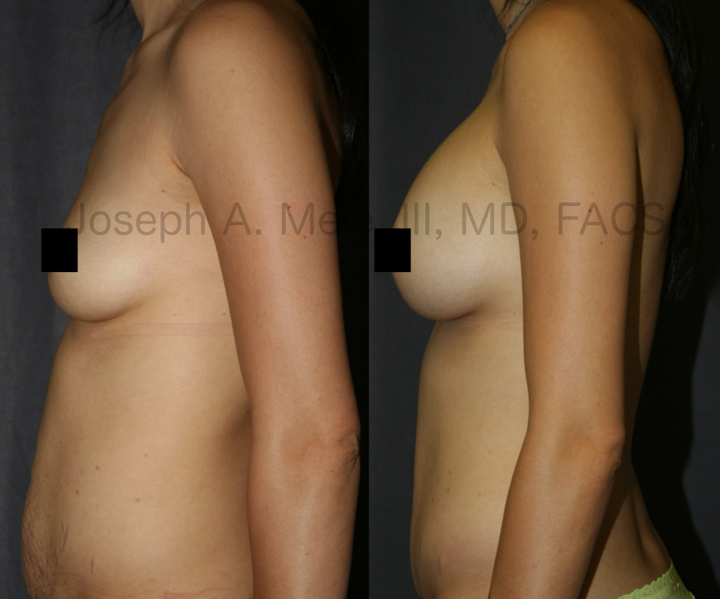 The Mommy Makeover above includes a Tummy Tuck and Breast Augmentation.