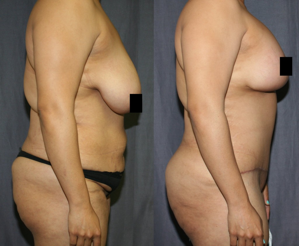 This Mommy Makeover includes a Breast Lift with Breast Implants, A Tummy Tuck with Liposuction and a Brazilian Butt Lift with Fat Grafting.