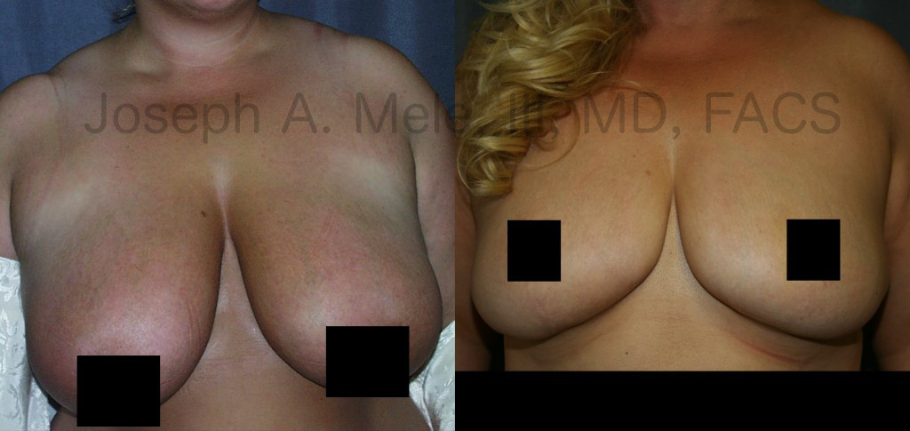 Some Mommy Makeovers include a Breast Reduction rather than Breast Augmentation.