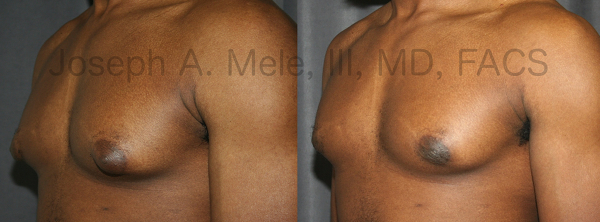 Gynecomastia Reduction removes excess breast tissue from the male chest. Excess tissue can be removed with Liposuction or direct excision, depending on the amount, location and nature of the breast tissue.