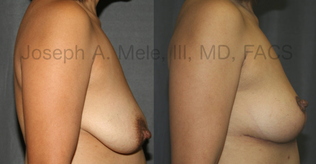 It is easy to see the improvements that this Breast Lift achieved in the uncensored Mastopexy before and after photos above. Breast Augmentation was not performed, so the breast volume has not changed; however, the overall breast aesthetic has improved dramatically. An inverted-T Breast Lift was performed to improve the breast shape and nipple position. The areolae were also reduced with an Areolar Reduction. The result is much more youthful breasts.