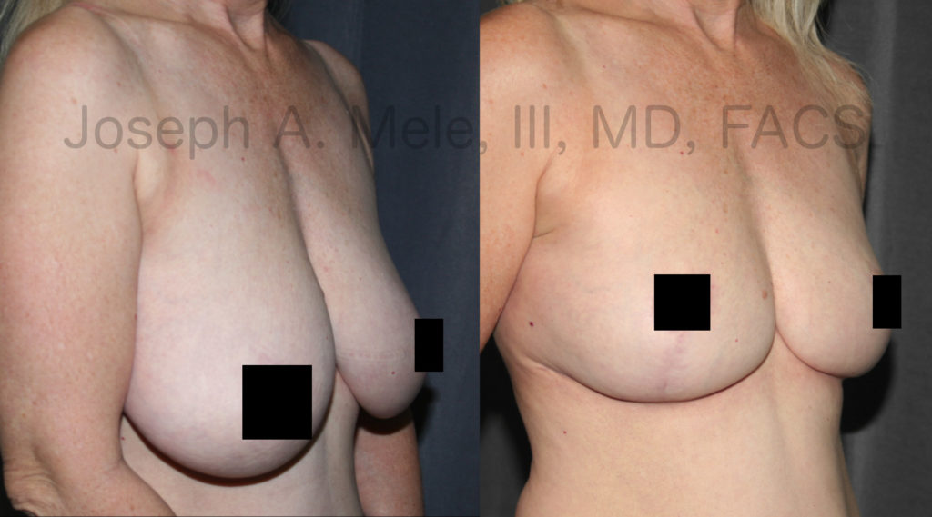 These Breast Reduction before and after pictures demonstrate the amount of reduction and enormous lift possible with the inverted T-technique. You will notice that the breast hangs well below the level of the mole visible anterior to the crook of her elbow in the before photo, while in the after photo, the base of the breast is well above it.