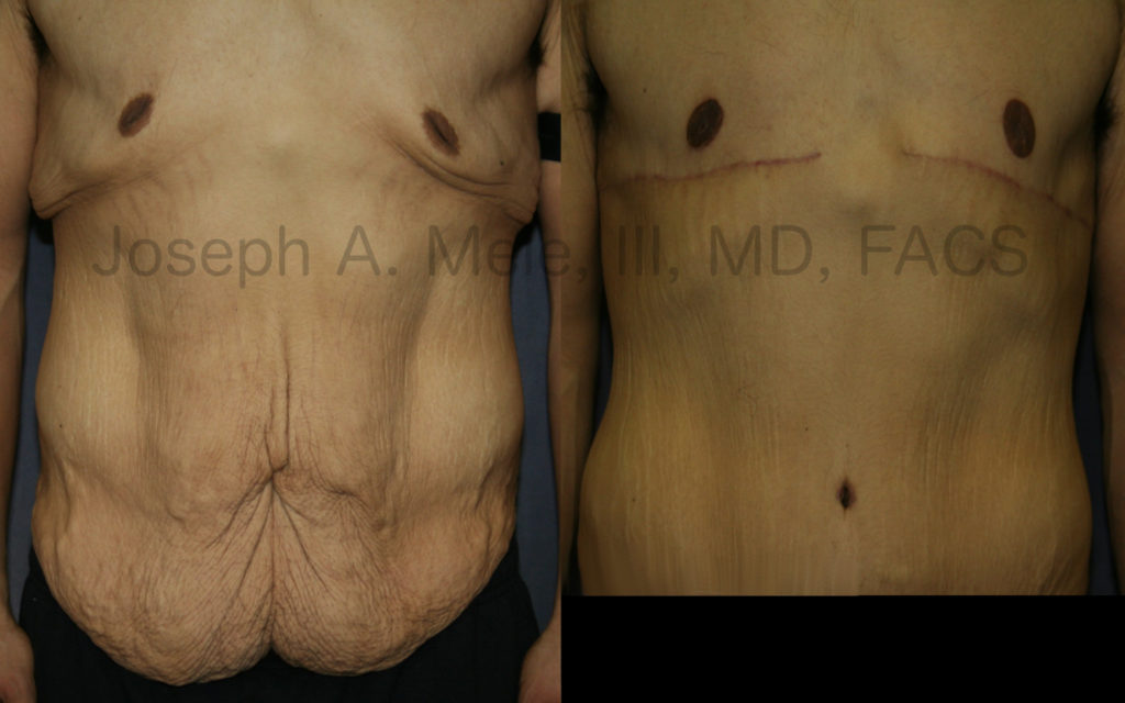Body Lift after massive weight loss including: chest reduction (massive gynecomastia reduction), areolar reduction, breast lift and abdominoplasty (tummy tuck). The early scars are more noticeable in the first several weeks to months after surgery, but will continue to improve and fade during the year or two after surgery.