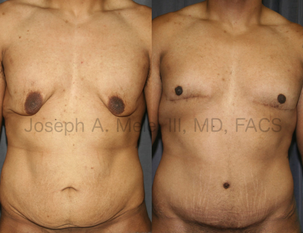 Gynecomastia Reduction after Massive Weight Loss is a different operation than the typical gynecomastia reduction. The large amount of excess skin and extremely low nipple position require special attention to detail and appropriate treatment to achieve a great result. This patient had chest skin reduction (a male breast lift), reduction and repositioning of his nipples along with a tummy tuck to restore his physique after impressive weight loss.