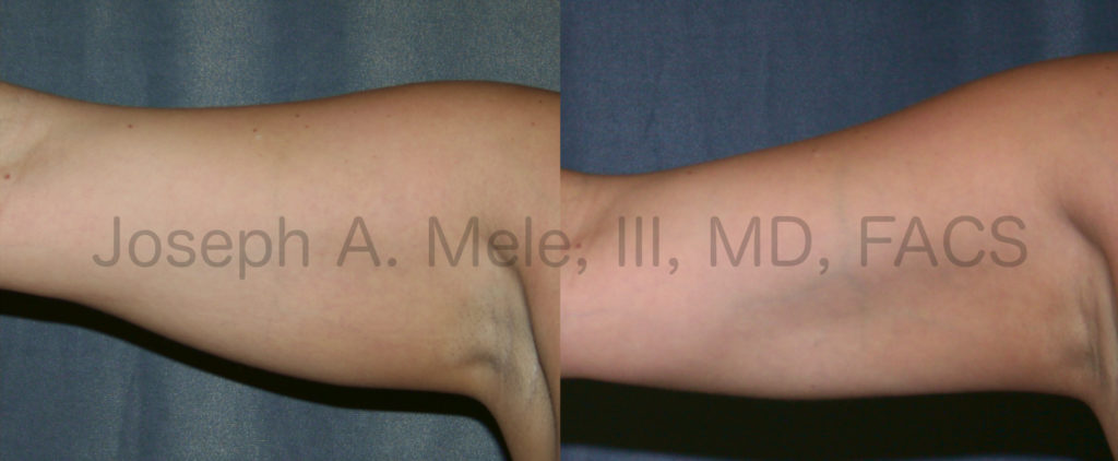 Before and after pictures of arm liposuction reveal smaller arms with better muscle definition after liposculpture.