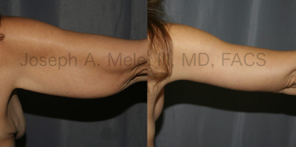 Arm Lift Before and After Pictures - Post-Bariatric Plastic Surgery