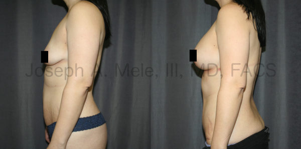 Breast Augmentation with Breast Lift Before and After Pictures