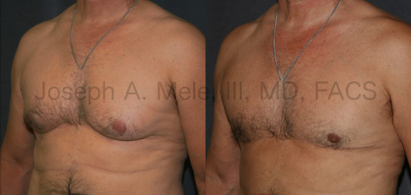 Male Breast Reduction after massive weight loss - post-bariatric plastic surgery  before and after pictures