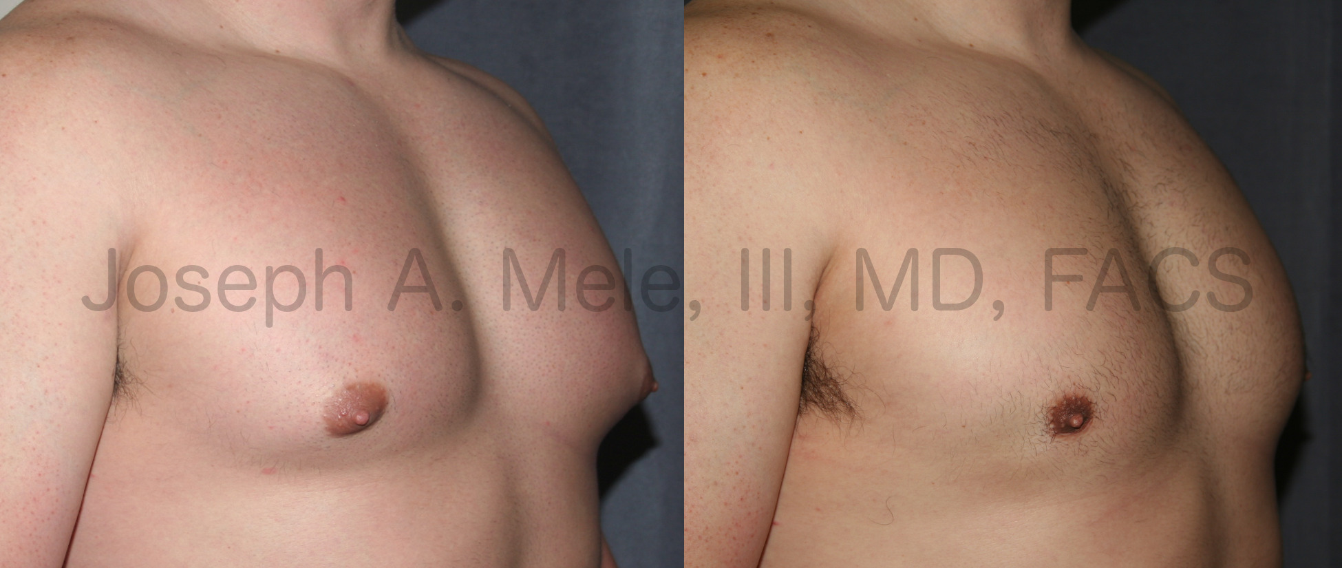 Gynecomastia Reduction is performed in several ways. Often, a combination of Liposuction for fat removal and direct excision of the firm breast tissue located beneath the nipple is the best combination.