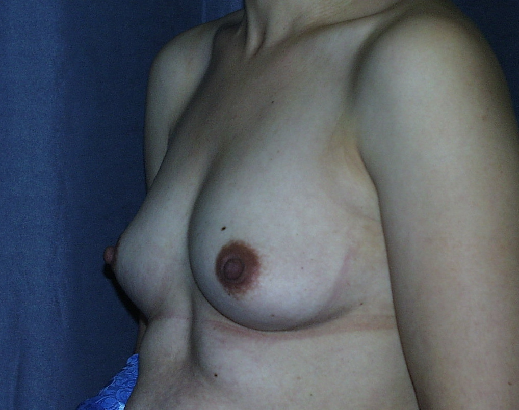 Before Mommy Makeover, the breast have lost volume and are smaller than before pregnancy.