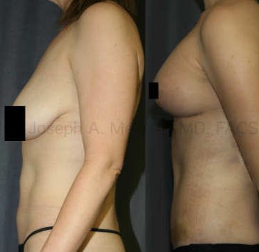 The Mommy Makeover helps by enhancing both the breasts and the belly in a single combination plastic surgery procedure. Above, a Breast Augmentation Lift (Augmentation Mastopexy) is combined with a Tummy Tuck for the optimal result.