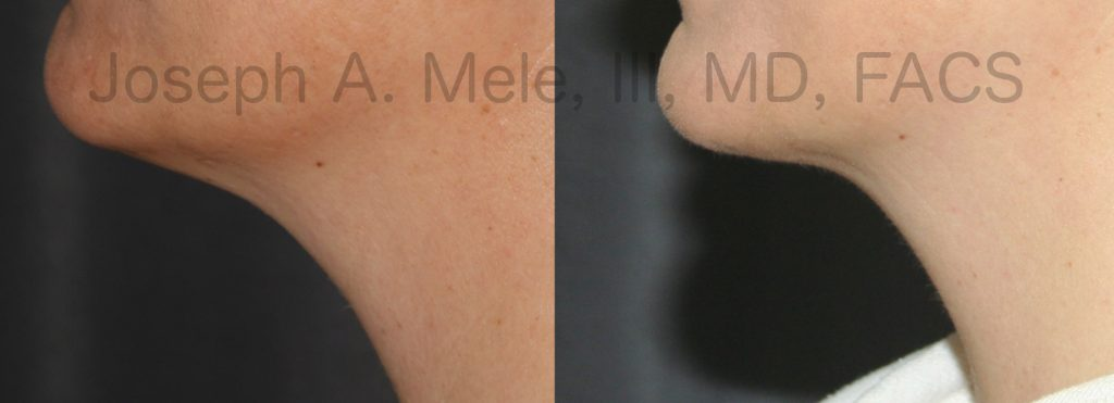 The full neck responds well to Neck Liposuction, as long as the skin tone is good. This is demonstrated by the Neck Liposuction Before and After Pictures shown above.