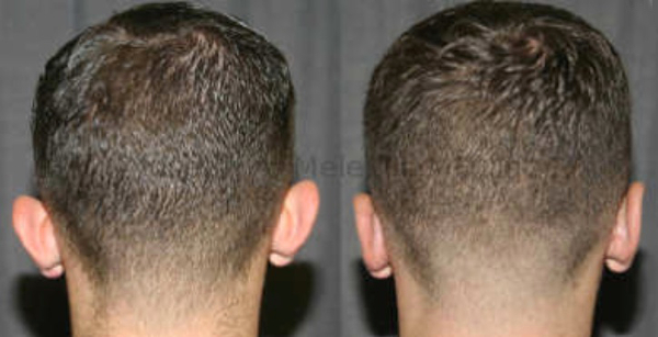 The Otoplasty scar is hidden in the fold behind the ear, allowing the hair to be worn up, or even shaved off with confidence.
