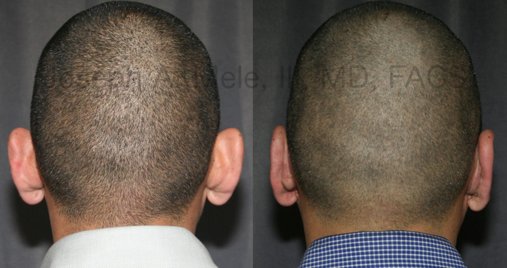 Short hair does not disguise prominent ears. However, since the incisions are hidden in the fold behind the ears, short hair is not a problem for concealing the Otoplasty incision.