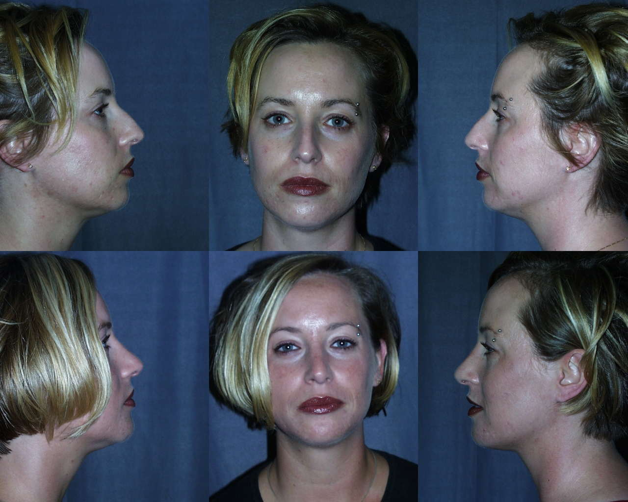 Rhinoplasty and Chin Augmentation Before and After Pictures