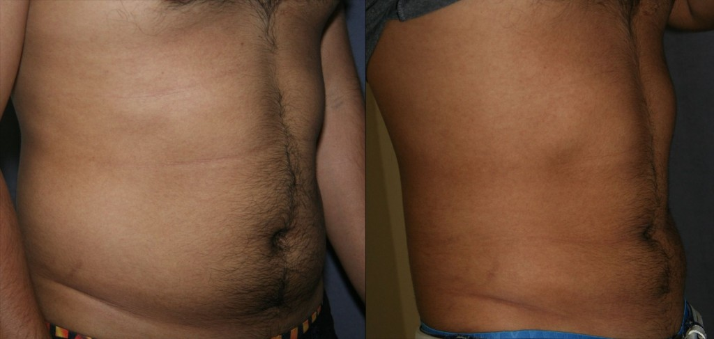 Liposuction of the Abdomen and Flanks - Male