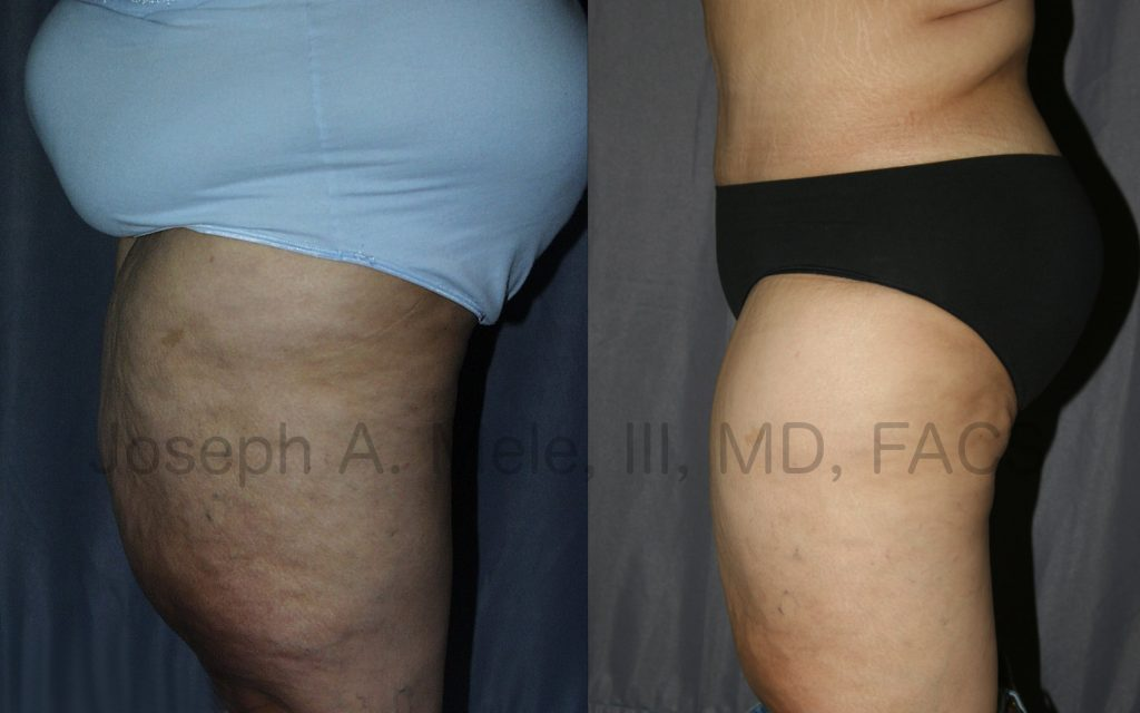 Thigh Lifts are most often performed after massive weight loss or bariatric surgery. They can be combined with other skin tightening procedures, such as an abdominoplasty in this case.