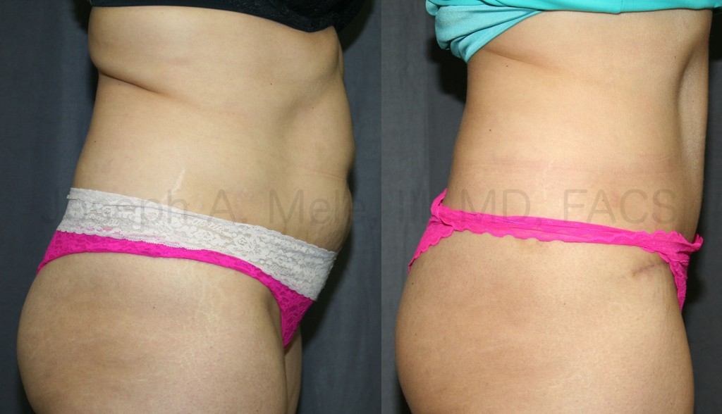 The Tummy Tuck can increase the support for the belly and the back.