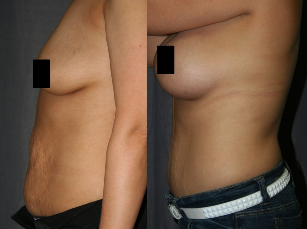 These Mommy Makeover before and after photos display the most popular combination of belly and breast enhancement: The Tummy Tuck (Abdominoplasty) with Breast Augmentation (Breast Implants).