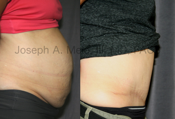 Abdominoplasty After Babies