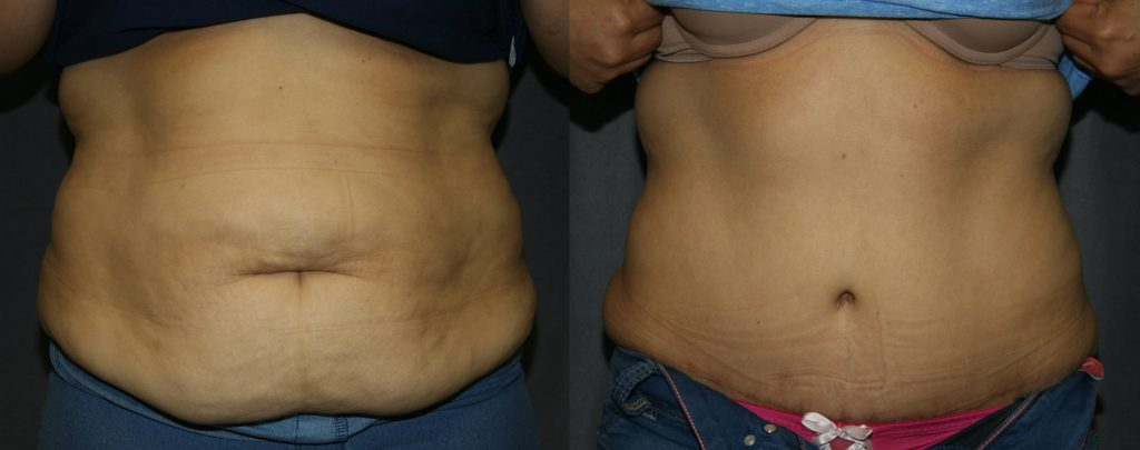 Abdominoplasty Before and After Pictures: The front view of the above Abdominoplasty shows how much the abdominal muscles and skin are tightened. The shadows of the muscles are brought closer to the midline and skin is much smoother. The belly button is also rejuvenated.