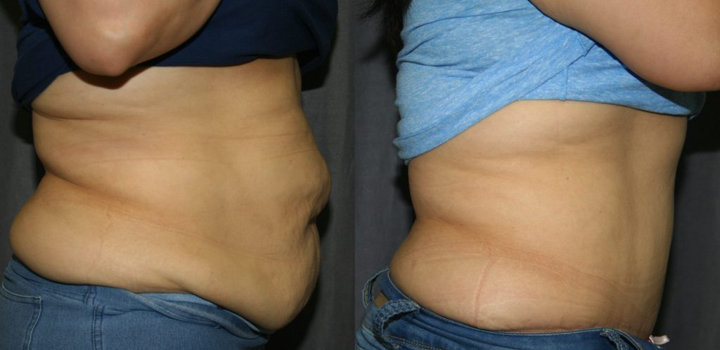 Tummy Tuck Before and After: These side views of Abdominoplasty before and after pictures show what a Tummy Tuck can do to address overstretched abdominal muscles and abdominal skin laxity seen after pregnancy or weight loss.