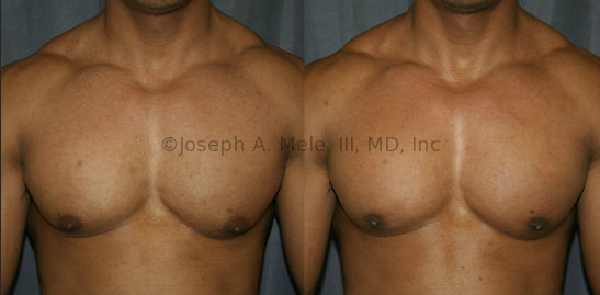 Before and After Gynecomastia Reduction - A well defined masculine chest is hard work, but sometimes being in incredible shape is still not enough. This patient works very hard for his physique. He had small amounts of natural breast tissue (gynecomastia) behind the areolae, his left greater than right.