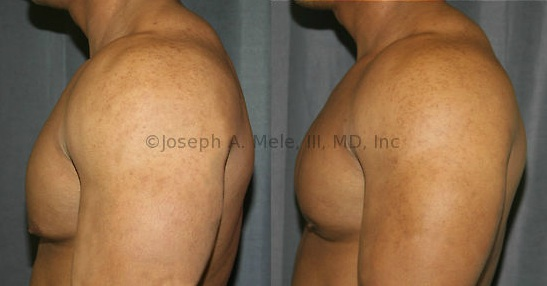 Gynecomastia Reduction provided smaller areolae, improved symmetry, elevataion of the left nipple and removal of the stigma of possible steroid use. The difference in projection of the tissue beneath the nipple, before and after gynecomastia surgery, is best seen on the lateral view.