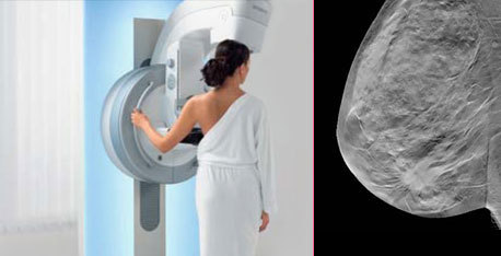 Tomosynthesis promises better pictures with lower radiation and more accurate results for breast cancer screening.
