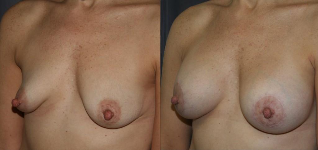 Tubular Breast Augmentation Lift