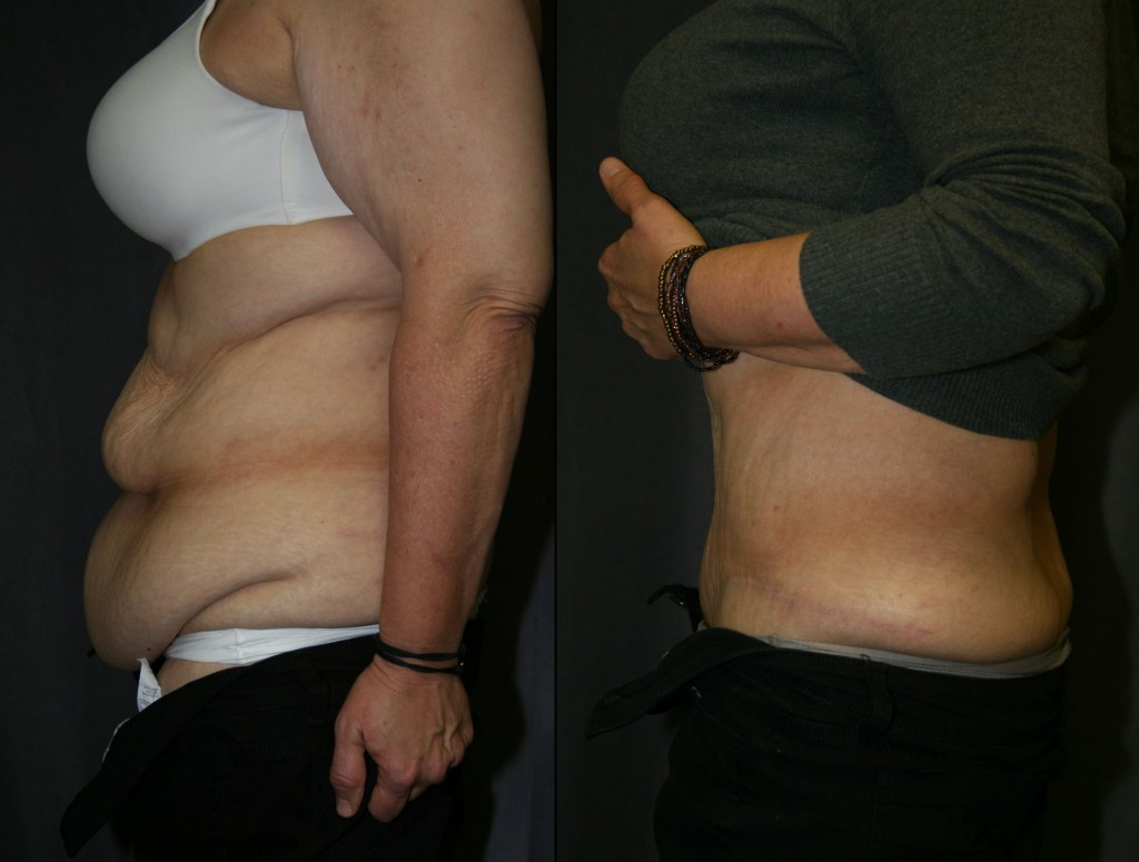 SmartLipo does not shrink skin like a tummy tuck can. Above, multiple folds of redundant skin are smoothed, improving how the belly looks and how clothes fit.