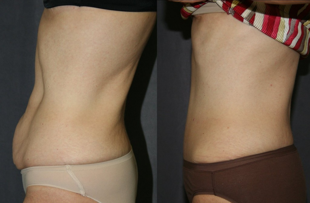 The before picture on the left shows no fat, a little loose skin and significantly loose muscle fascia giving that still a little pregnant look.