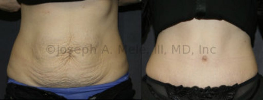 After pregnancy, or weight loss, the abdominal muscles, skin and fat can all be compromised. Fortunately, the Tummy Tuck can repair all three areas. Be certain to find a Board Certified Plastic Surgeon with experience for your belly rejuvenation.