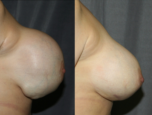 This woman developed a collection of blood (a hematoma) around her ruptured breast implant after trauma. Urgent breast implant replacement was performed before the hematoma became infected or leaked through the skin.