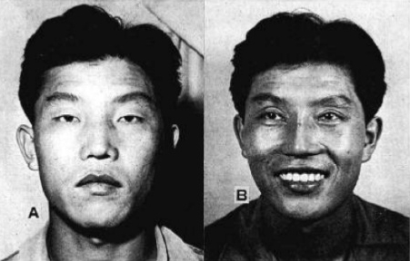 Above are the before and after pictures of the Korean translator who approached Dr. Millard. Notice the changes in the eyelids and nose. Do you think he looks less stoic?